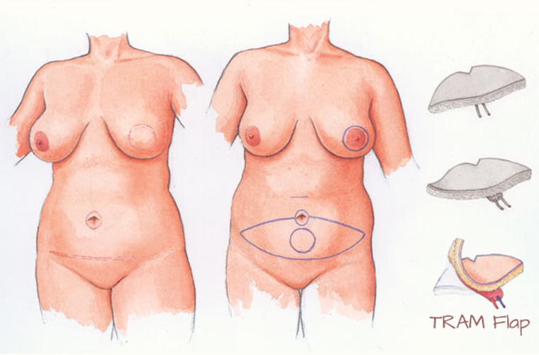 Can help flap breast reconstruction